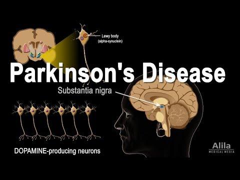 Parkinson's Disease, Animation
