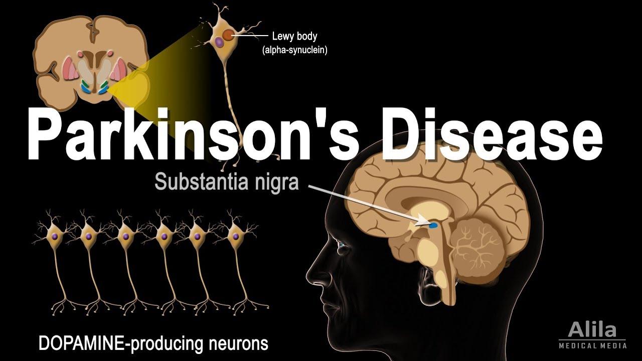 Parkinson's Disease, Animation - YouTube