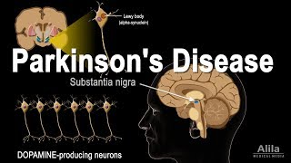 Parkinson's Disease, Animation