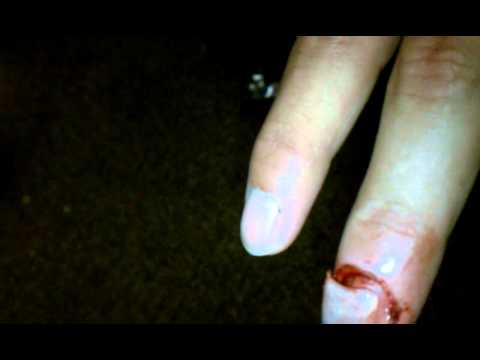 Hammer Smashed Fingernail Must Watch