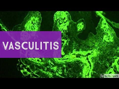 Vasculitis...Explained by a Dermatopathologist