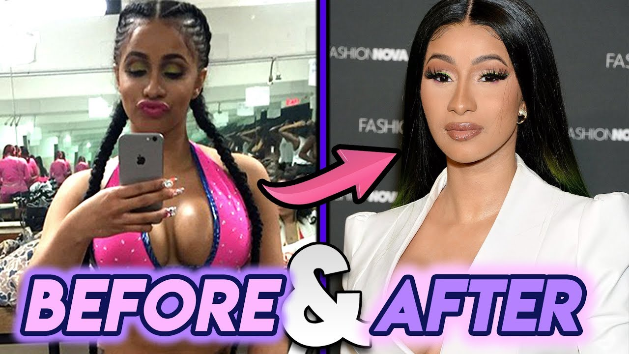 Cardi B Plastic Surgery: Before And After