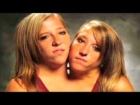 Что стало с сестрами Хенсел? Судьба сиамских близнецов!