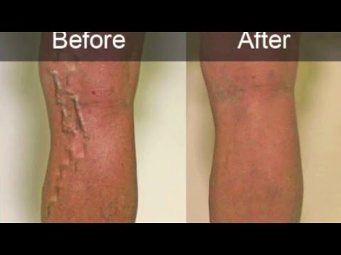 get-rid-of-varicose-veins-fast!-subliminals-theta-frequencies-hypnosis