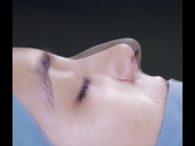 Rhinoplasty: Before and After