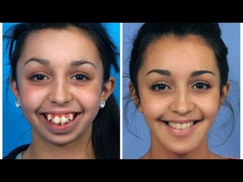 10 Incredible Before & After Transformations Of People
