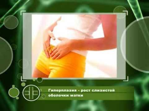 Справочник здоровья Гиперплазия