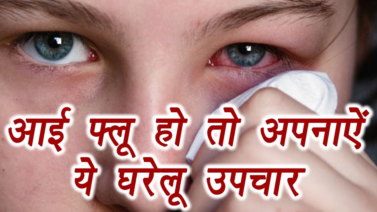Symptoms-and-types-of-eye-flu-in-hindi