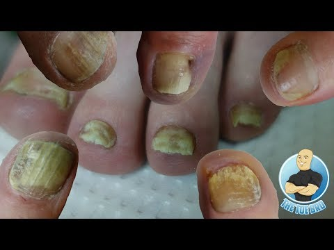 BEST TREATMENT FOR YOUR TOENAIL FUNGUS??? FOOT HEALTH MONTH 2018 #20