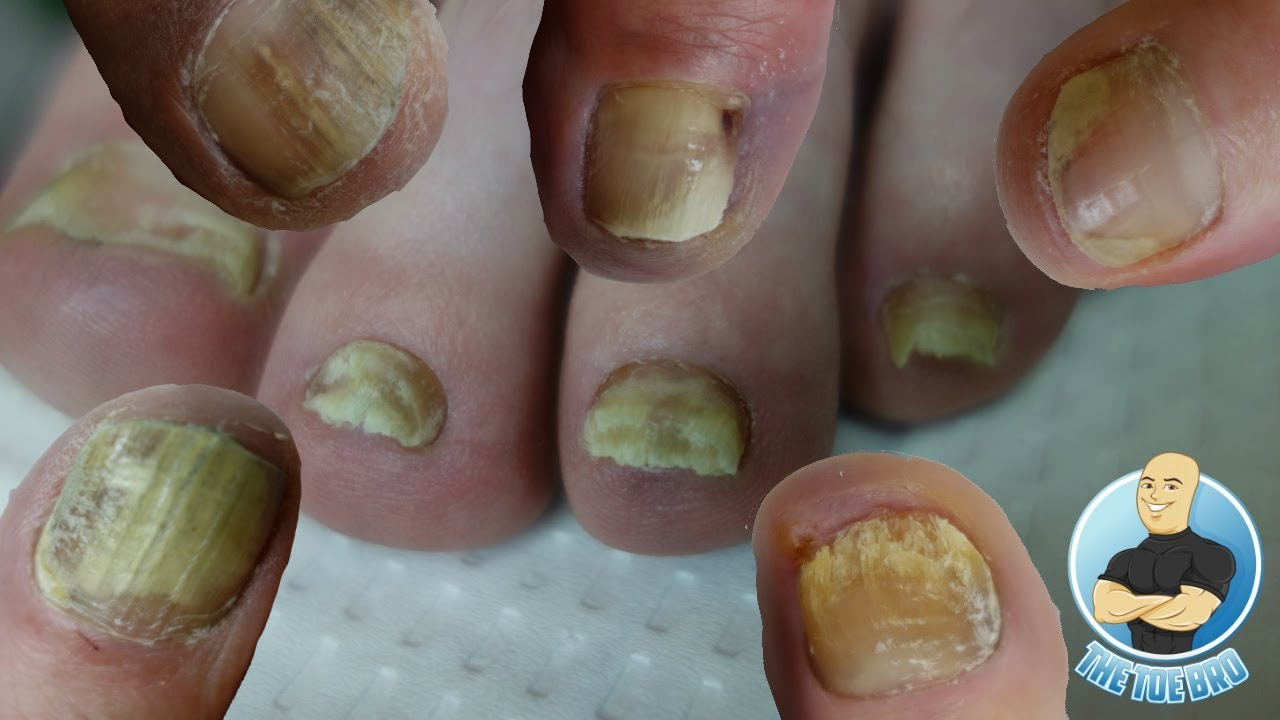 BEST TREATMENT FOR YOUR TOENAIL FUNGUS??? FOOT HEALTH MONTH 2018 #20 ...