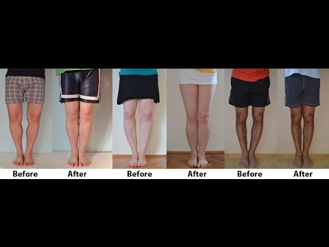 What Causes Bow Legs | What Everybody Should Know About What Causes Bow Legs