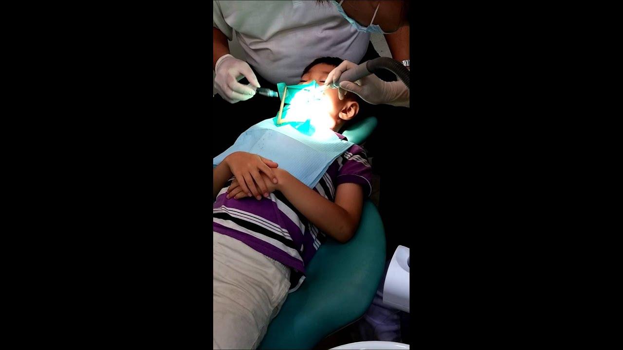 兒童牙醫治療-根管治療 - YouTube