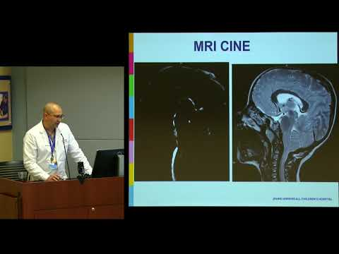 Chiari Malformations & Current Research in the Field