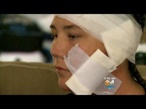 Victim Of Recalled Takata Airbag Speaks To CBS4