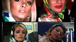 Video 2 Iranian Girls SELFIE Car Crash - WTF #14 download MP3, 3GP, MP4, WEBM, AVI, FLV Agustus 2018