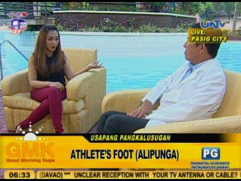 Athlete's Foot (Alipunga)