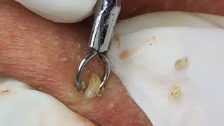 REMOVAL HIDDEN ACNE Hang Oliver lấy mụn ẩn Thắng  - YouTube 15