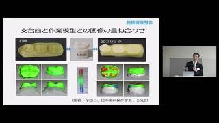 「チェアサイド3D プリンタを用いた水溶性模型製作による被覆冠の1回歯科治療」 東京医科歯科大学 大学院医歯学総合研究科 う蝕制御学分野 講師 二階堂 徹