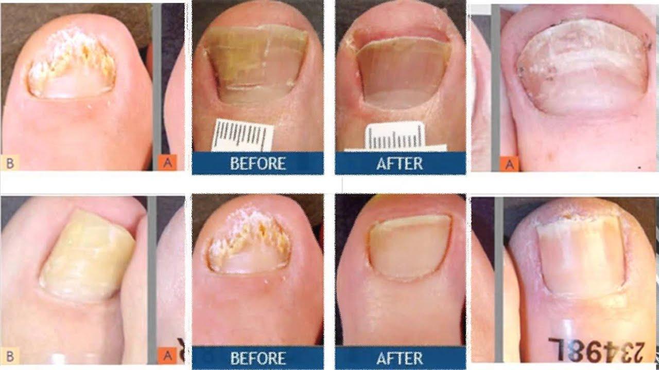 cure toenail fungus - YouTube