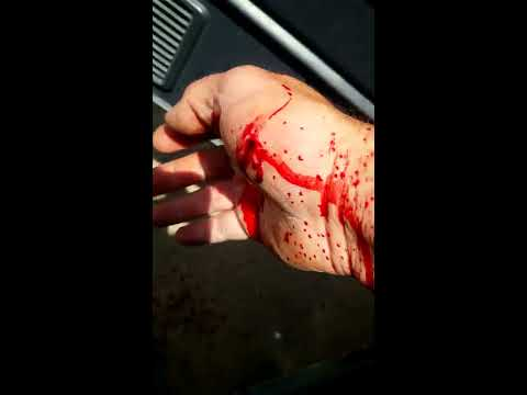 Projectile blood squirting! Guy bleeds out after getting stabbed but keeps camera recording! amazing