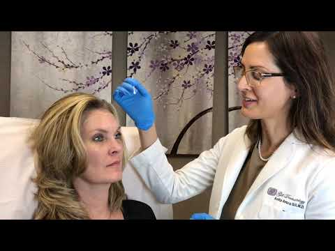 On-Label Botox for Frown/Forehead Lines and Crows Feet: Houston, The Woodlands, Conroe, Texas