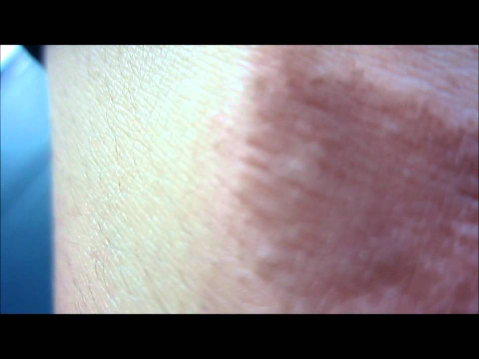Scars From The Salt And Ice Challenge Youtube