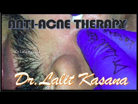 BEST ANTI ACNE THERAPY
