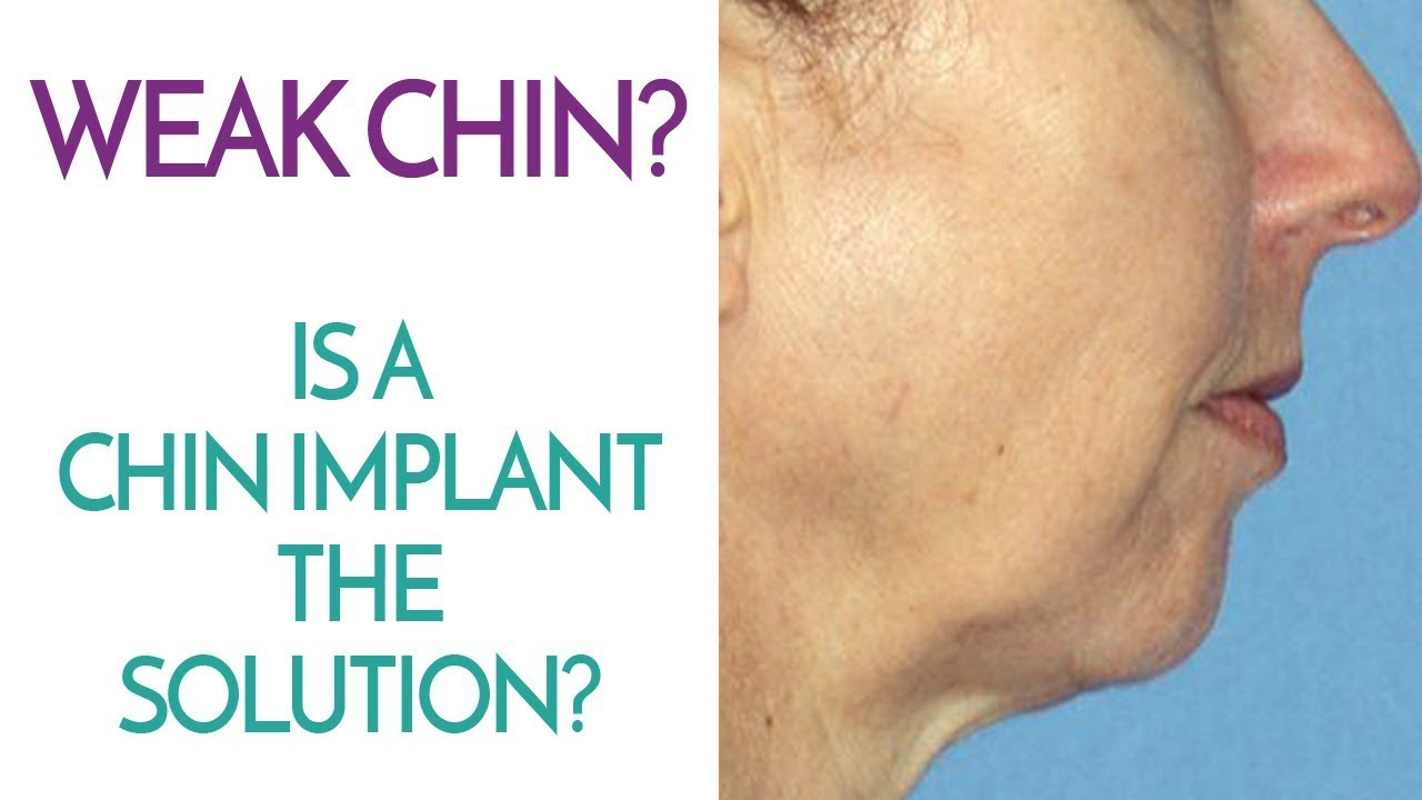 Chin Implants - Are They The Solution To A Weak Chin And Getting A Better  Profile?