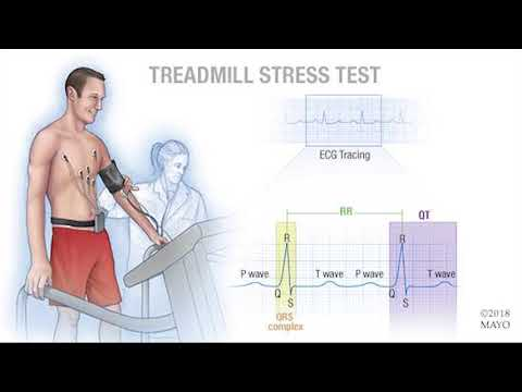 Mayo Clinic Minute: What Is A Cardiac Stress Test?
