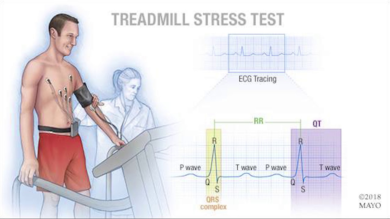 Mayo Clinic Minute What Is A Cardiac Stress Test Youtube