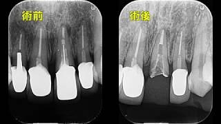 精密根管治療 【愛知県刈谷市の歯医者】 根尖閉鎖 アピカルプラグ 自由診療 顕微鏡歯科 One visit Apexification Micro Endodontics Precision Endo