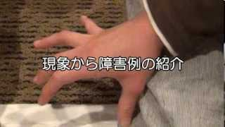 尺骨神経障害「手のひらの開閉不全」の改善