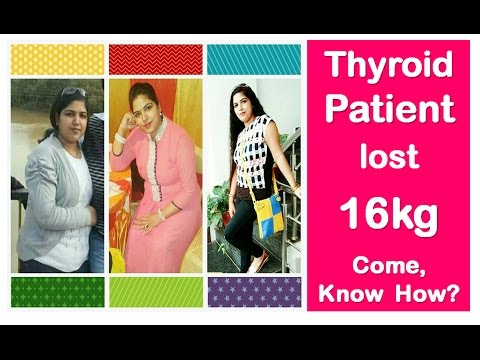Thyroid Patient Lost Kg Come Know How No