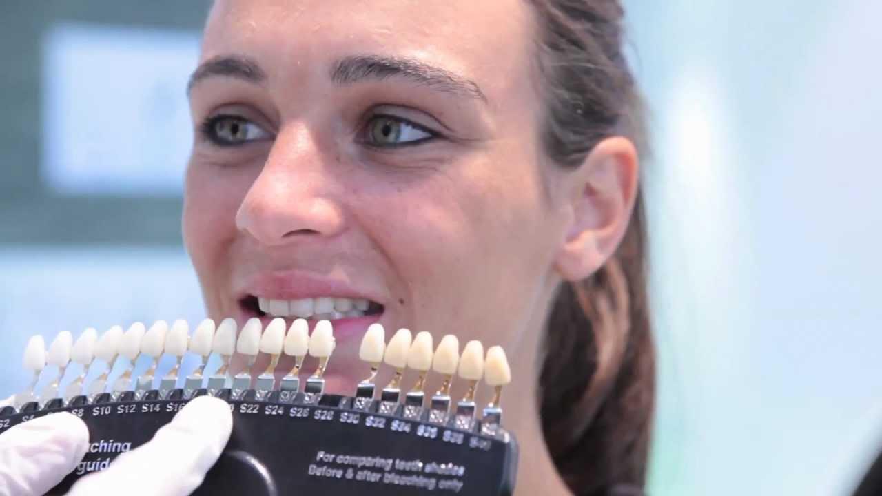 bar blanchiment des dents