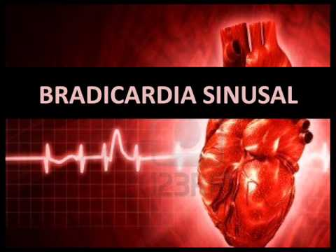 causas de una taquicardia sinusal