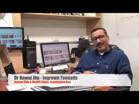 Dr Jha - Ingrown toenail treatment | surgery | fixing toenail