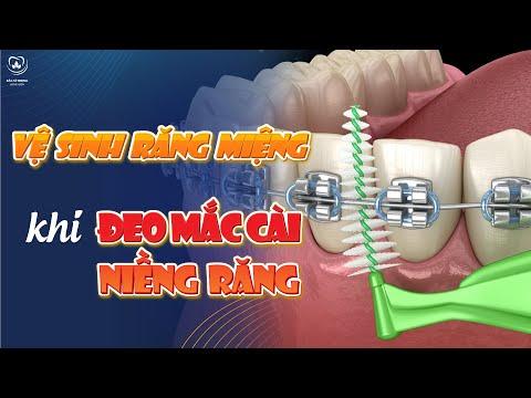 hướng dẫn vệ sinh răng miệng khi mang mắc cài tại Kemtrinam.vn