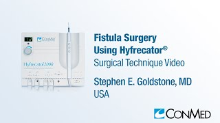 Repeat youtube video Dr. Stephen Goldstone - Fistula Surgery Using Hyfrecator® - CONMED Surgical Technique