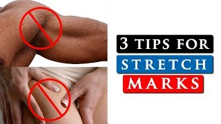 How to get rid of STRETCH MARKS on your SHOULDERS, LEGS & STOMACH