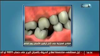 #القاهرة_والناس | خطورة تأخر تركيب الأسنان بعد الخلع مع دكتور وليد محمد عباس فى #الدكتور