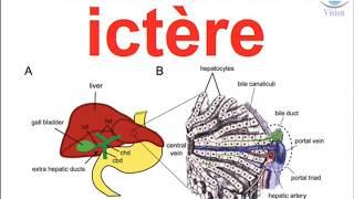 Diagnostique Medical De L Ictere A Bilirubine Conjuguee Ou Non Physiopathologie Neonatal Nouveau Ne Youtube