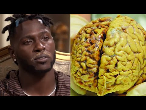 What's Wrong with Antonio Brown (explained)