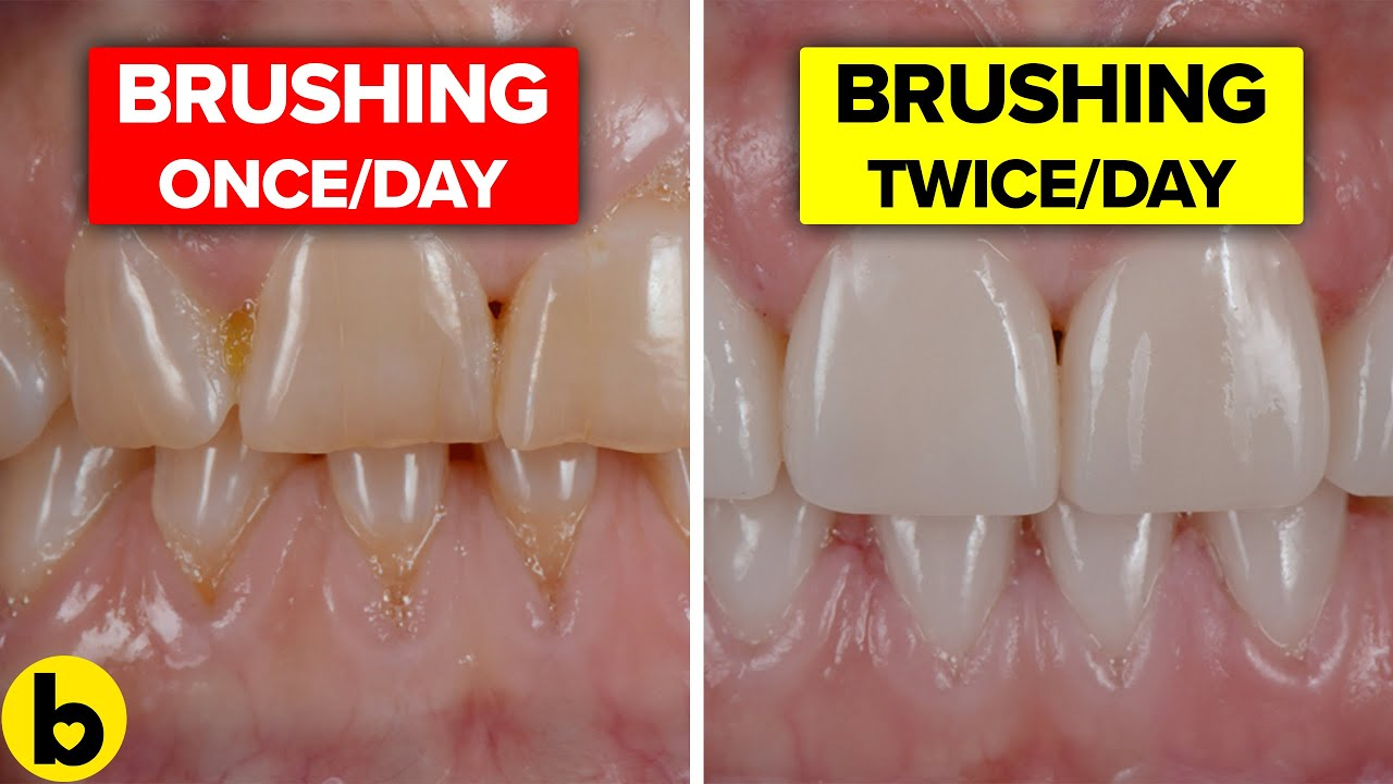 18 Foods And Habits That Are Staining Your Teeth