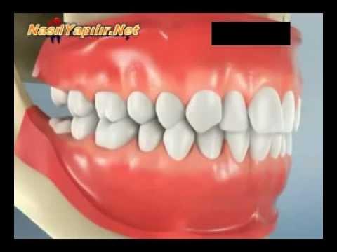 20'lik Diş Çekimi Nasıl Yapılır? | NasılYapılır.Net |