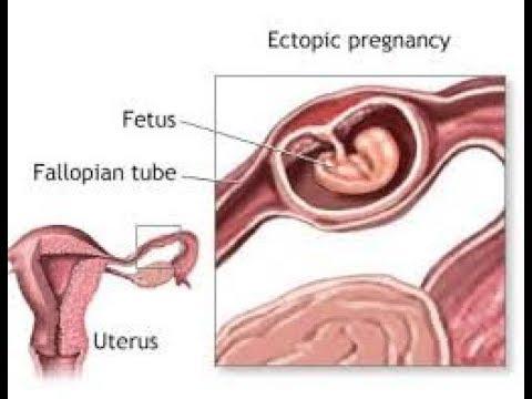 Трубная беременность и гидросальпинкс трубы с другой стороны.