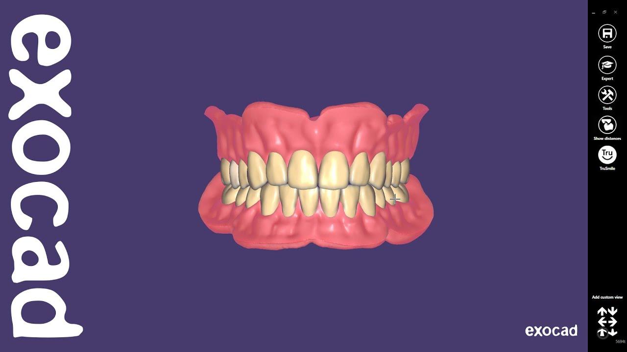 exocad Video Tutorial: Full Denture Design