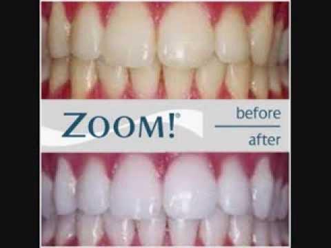Carmel Valley Dentist | Dental Implants | Laser Dentist