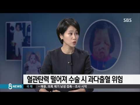 신경섬유종, 어떤 병이길래…수술 가능성은? / SBS