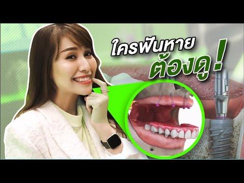 รากฟันเทียมรุ่นใหม่ ใครฟันหายต้องดู || STRAUMANN BLX - วันที่ 19 Dec 2019