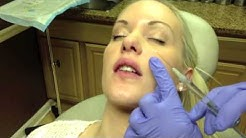 Botox & Juvederm Lip Injection in Virginia by Dr. Naderi (DC, VA, MD)
